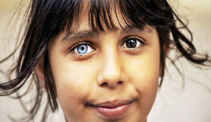 في ظاهرة نادرة..عينا طفلة سورية تشعل مواقع التواصل