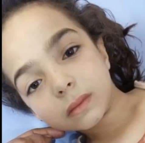 إصابة طفلة بجروح خطرة بإطلاق نار في حفل زفاف بمدينة الباب